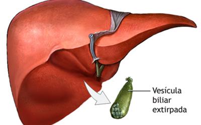 Colecistectomía (vesícula)
